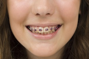 Orthodontist in Round Lake & Skokie Lists 2nd Opinion Reasons Before Getting Braces