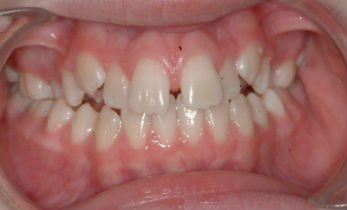 Photo of teeth before dental treatment