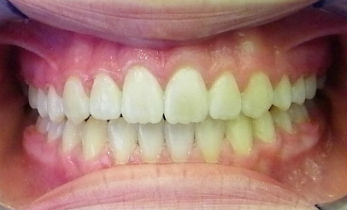Photo of teeth after dental treatment