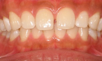 Photo of teeth before dental treatment with Gaps
