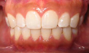 Photo of teeth after dental treatment with Gaps