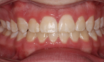 Invisible Braces example after photo