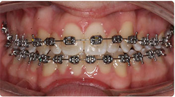 children orthodontics after photos