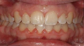 remove additional teeth