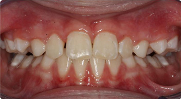 before and after orthodintics photos
