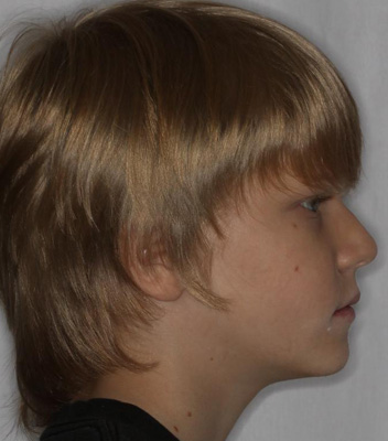 See him after orthodontics