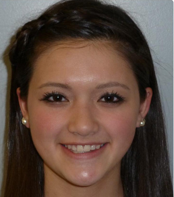 Teeth with spaces corrected by Roundlake orthodontists