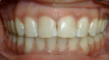 fix unequal teeth by orthodontist