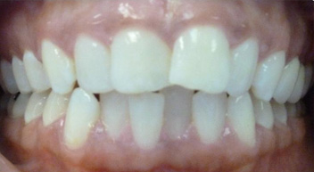 how to fix unequal teeth