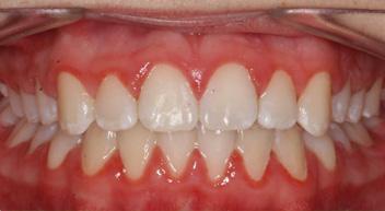 Fix Protruding teeth in Grayslake