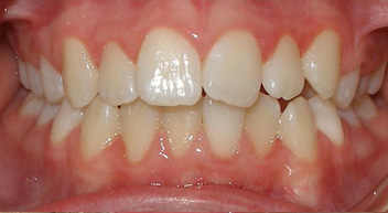 Protruding teeth picture