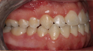 Winnetka braces before and after photos