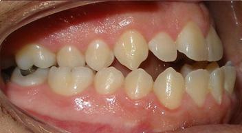 Winnetka braces