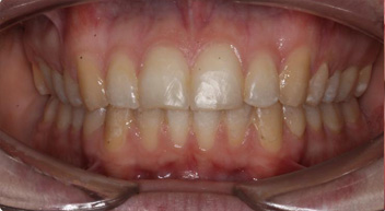 dental treatment with Additional teeth removal before and after photos