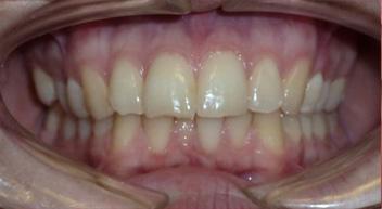 Additional teeth