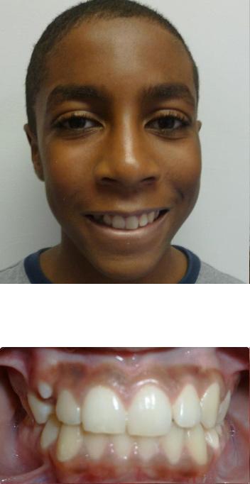 irregular tooth
