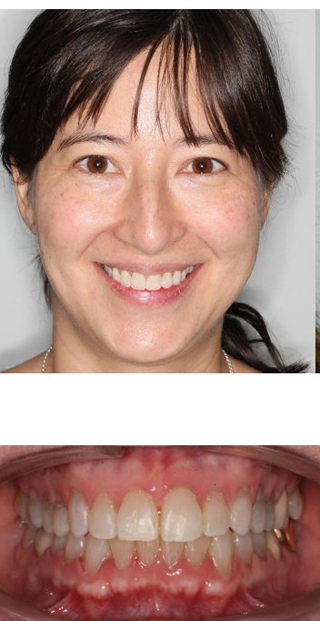 after dental implants picture