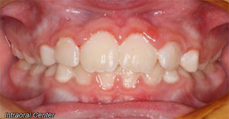 Phase one treatment intraoral view after
