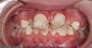Phase one treatment intraoral viewbefore
