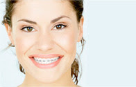 Braces with shorter treatment time