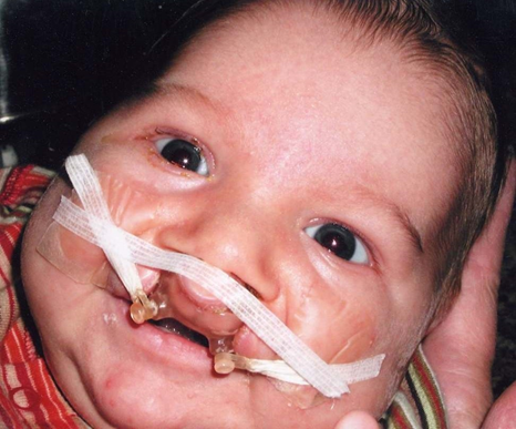Cleft Lip and Palate Case Two