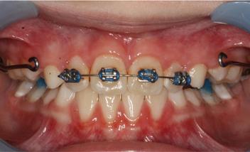 after braces photo