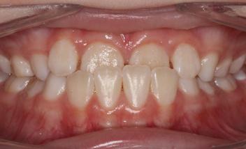 braces images