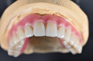 Periodontal diseases cause health problems.