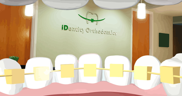 lingual braces at id orthodontics