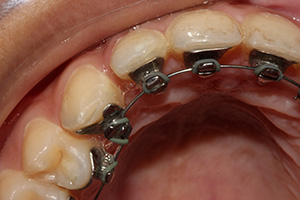 Lingual braces real patient