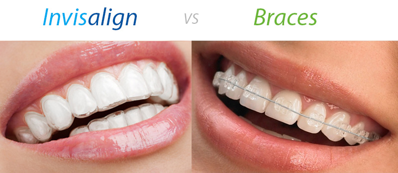 Secret insights into Invisalign Nhs