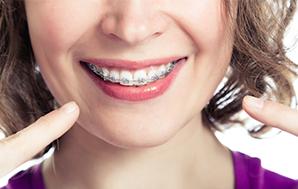 التقويم الأسنان