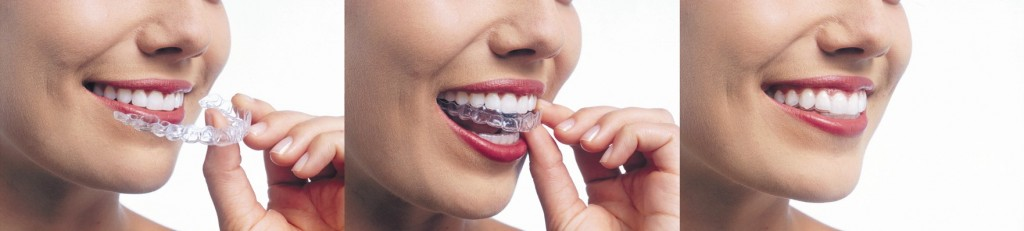 how to wear invisalign