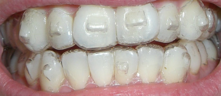 invisalign attachments with aligner