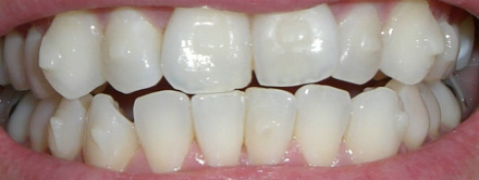 invisalign attachments without aligner
