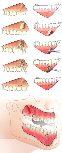 bollard plates surgery procedure for orthodontic treatment