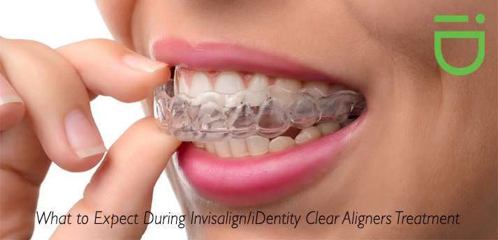 Invisalign Treatment What To Expect