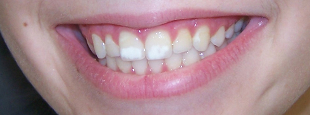 white spots caused by orthodontic treatment
