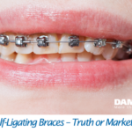 Damon Self-Ligating Braces
