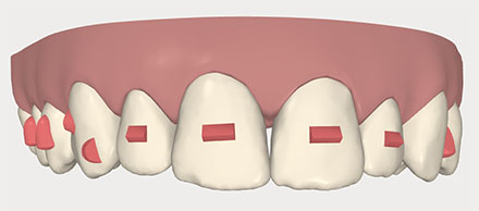 Invisalign buttons or attachments