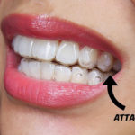 invisalign attachments