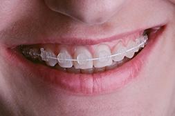 ceramic braces white wire