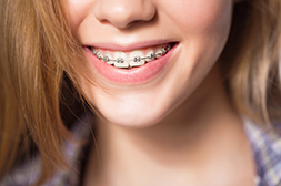 metal braces for adults
