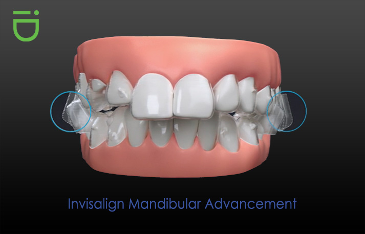 Invisalign mandibular advancement