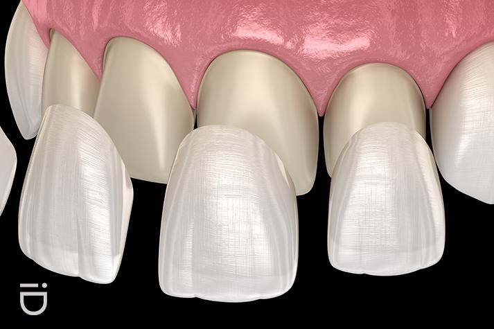 veneers-instant-orthodontics