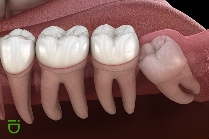 impacted-tooth-and-orthodontics