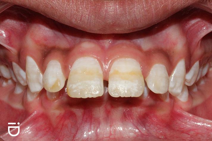 buck teeth overjet orthodontist Round Lake IL