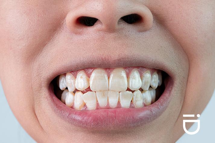 braces white spots on teeth